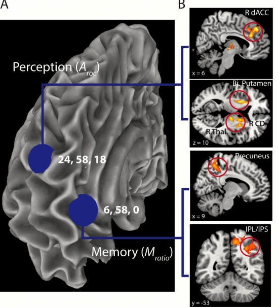 fMRI connectivity results