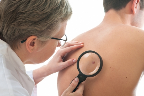 skin cancer screening