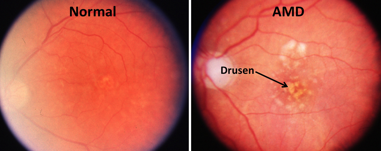 One stem cell treatment stabilizes macular degeneration ...