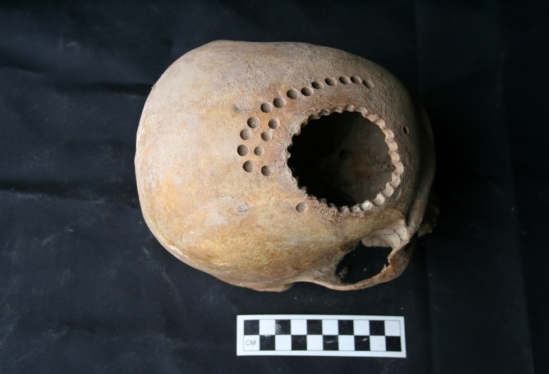 Ancient practice of trepanation