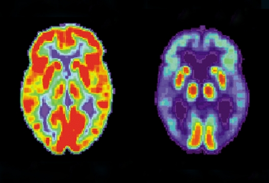 PET scans of normal (left) and Alzheimer's (right) brains
